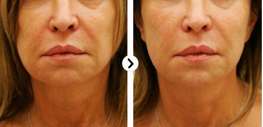 Zabieg HIFU twarz - przed i po