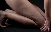 klęcząca kobieta z cellulitem